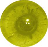 Posterior Subcapsular Cataracts